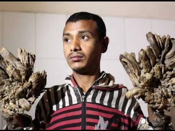 bangladesh-tree-man-abul-bajandar